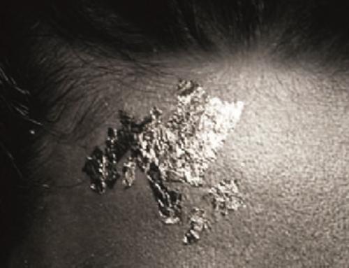 Tratamiento antibacteriano ION TEX para el material fonoabsorbente